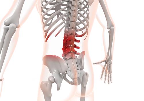 坐骨神経痛と骨格