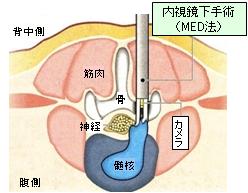 MED法 ヘルニア手術