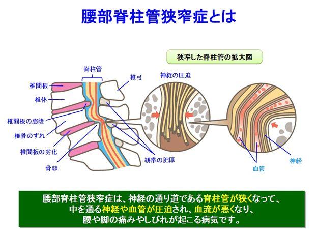 腰部脊椎管狭窄症