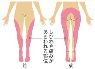 坐骨神経痛の痺れや痛みの箇所