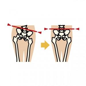 骨盤のズレと坐骨神経痛
