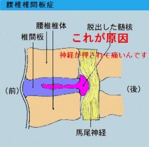 腰椎椎間板症の原因と症状