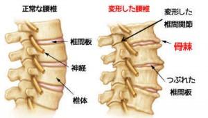 変形性腰椎症の症状と原因