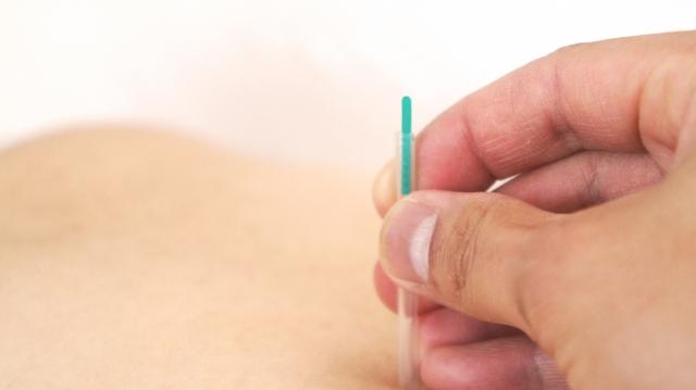 鍼灸治療で腰痛対策を行う